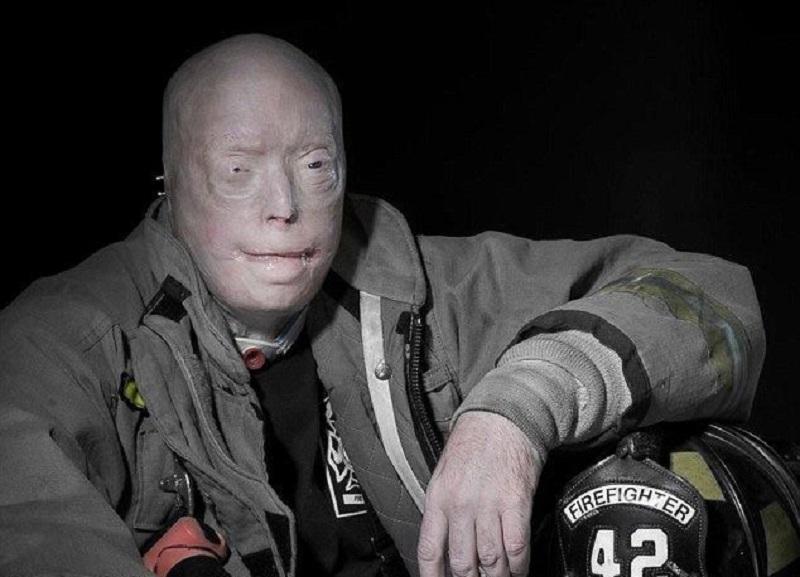 Вот как выглядит «человек без лица» через год после первой в мире пересадки...